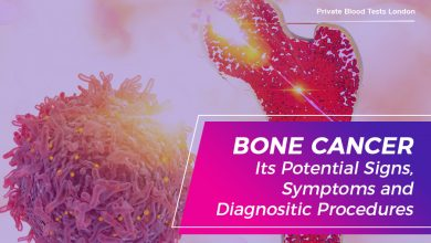 Photo of Bone Cancer: Its Potential Signs, Symptoms and Diagnostic Procedures