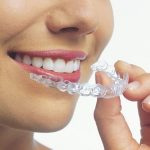 Innovative Invisalign Braces to Achieve an Improved Smile