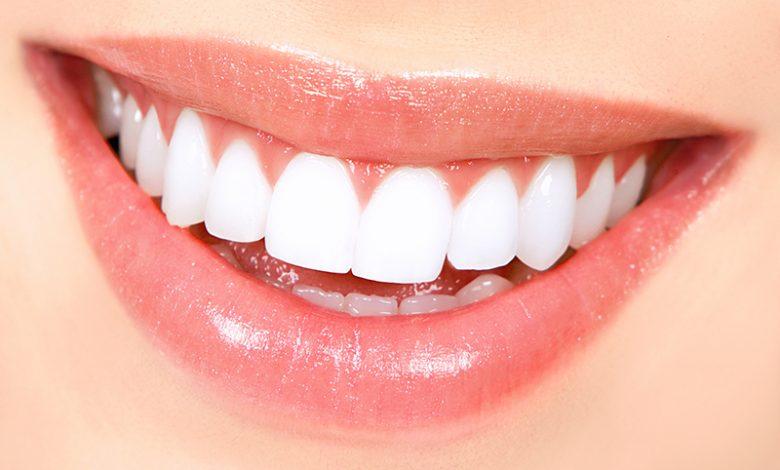 Teeth Whiteing