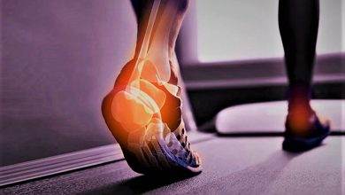 Photo of Manufacturing Expertise Must for Orthopedic Trauma Implants