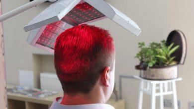 Photo of Best Hair Transplant in Jaipur – Cost, Procedure, Surgeon
