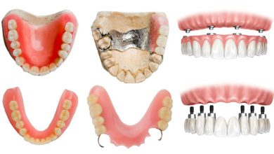 Photo of How Much Does It Cost For A Partial Denture?