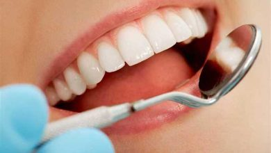 Photo of How do I whiten my teeth?