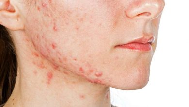 Photo of What You Should Know About Acne Scars Treatment – Skin Care