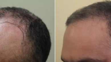 Photo of Debunking 5 Common Myths about PRP Hair Loss Treatment