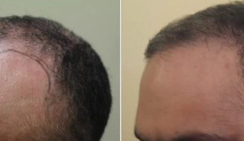 Debunking 8 Common Myths about PRP (platelet-rich plasma) Hair Loss Treatment
