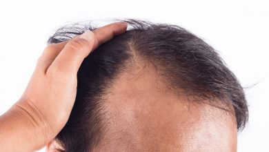 Photo of Hair Thinning After Hair Transplant