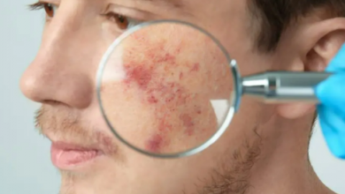 Photo of What you need to know about acne treatment